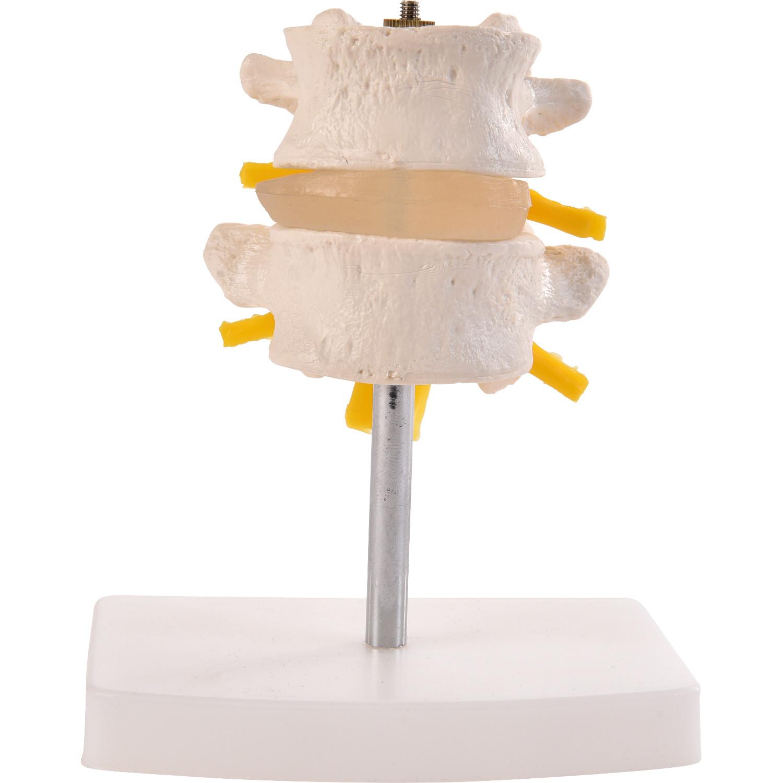 Physio Express | Anatomische Lendenwirbelsäule, 2tlg. | online ...